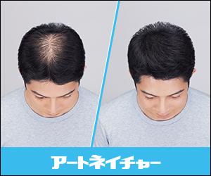 無料増毛体験メ ンズ アートネイチャー